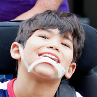 Special Needs Childrens Dentist Burnaby